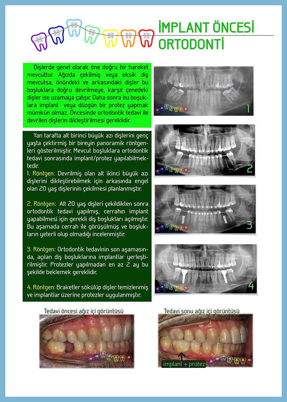 yetişkinlerde-ortodontik-tedavi